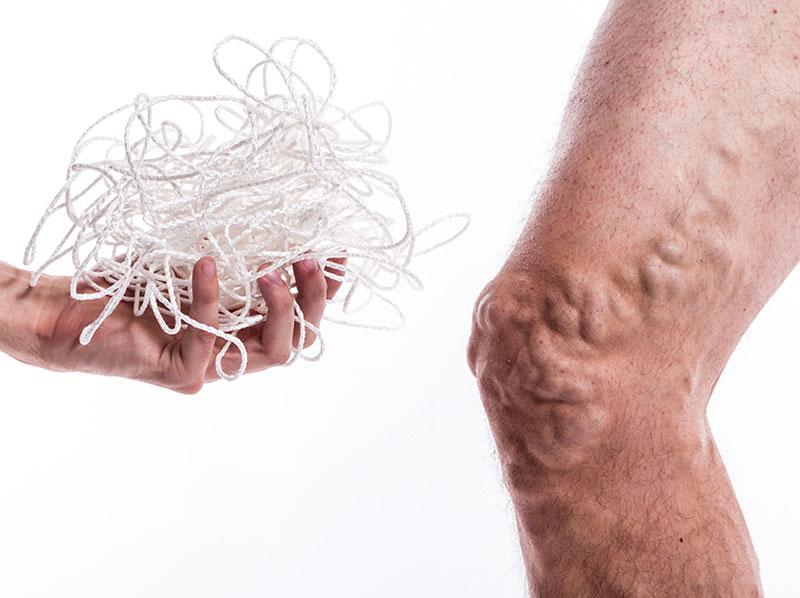 tratamentul non-tradițional al venelor varicoase)